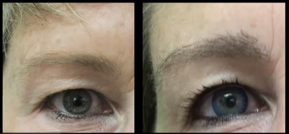 Before and After Eyebrow Transplant Procedure