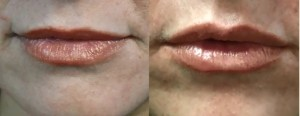 juvederm lip enhancement in a los angeles patient