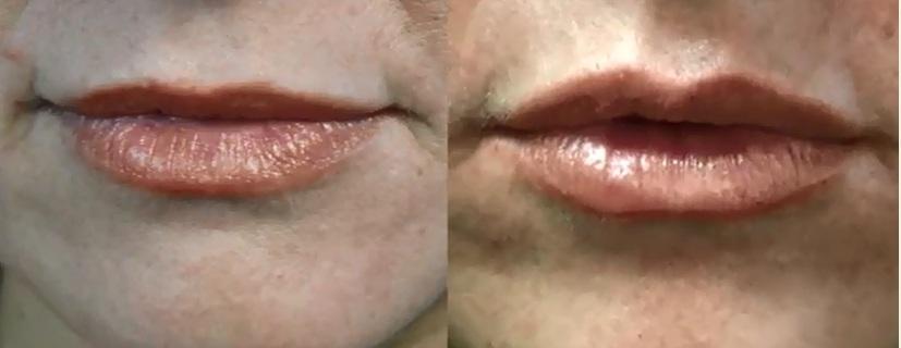 belotero-lip-injections-for-lip-enhancement-23