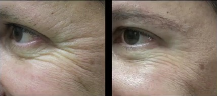 Crow's Feet Treated with Belotero Instead of Botox