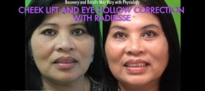 Radiesse for cheeks and tear troughs