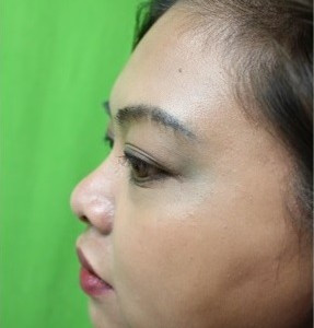 Non-Surgical Nose Job Using Radiesse to Augment the Nasal Bridge for Asian Nose