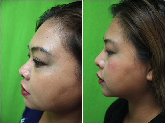 Asian Nose Bridge Enhanced Through Non-Surgical Nose Job with Radiesse