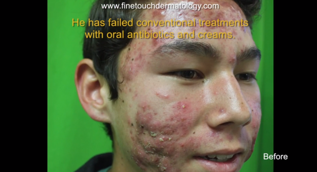 acne-scar-removal-treatments-3