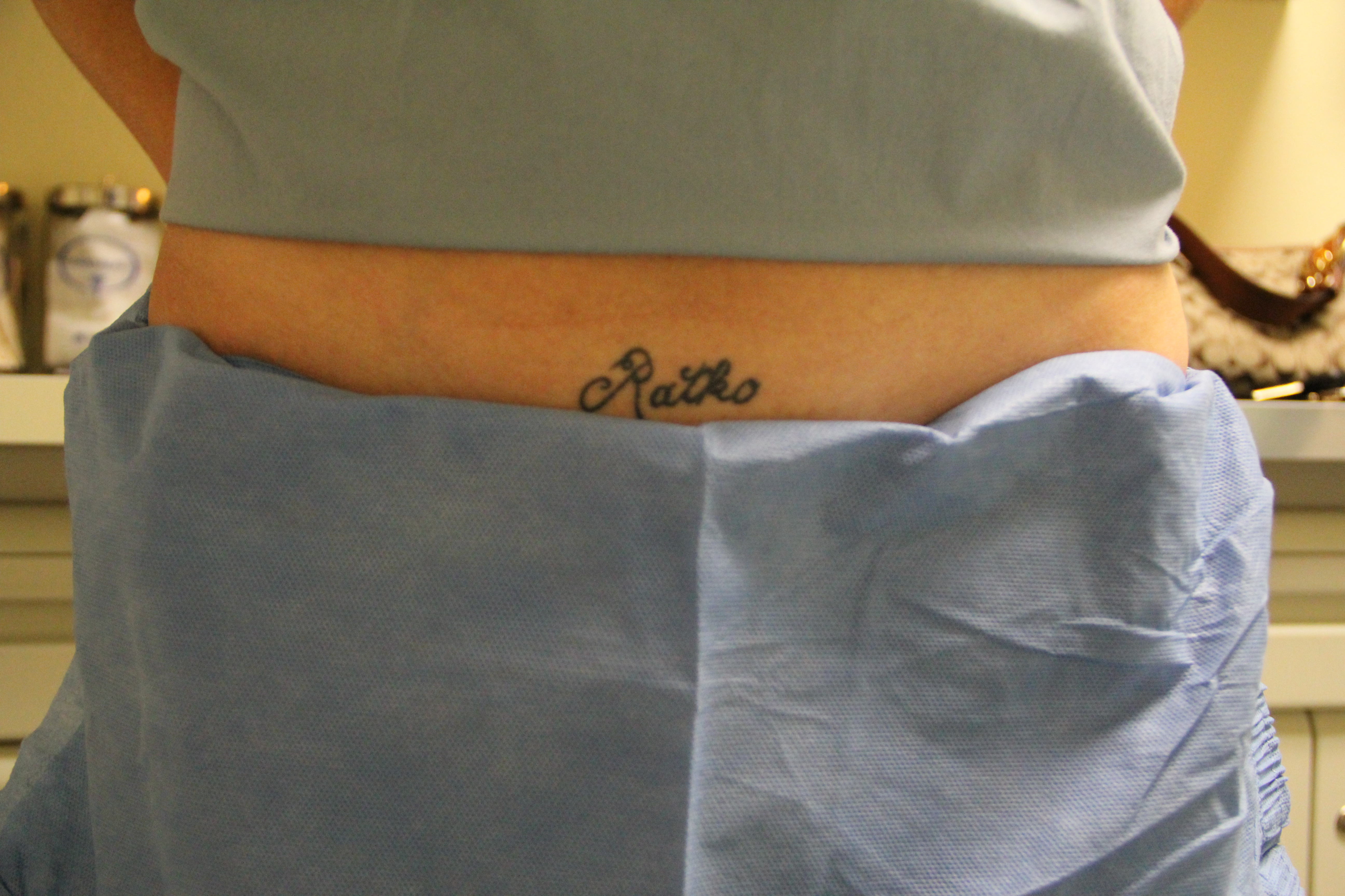 laser-tattoo-removal-19