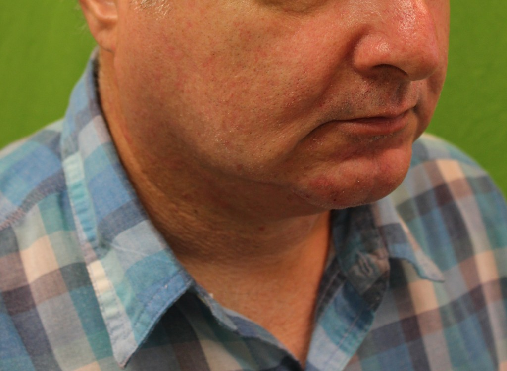After non-surgical chin augementation with radiesse