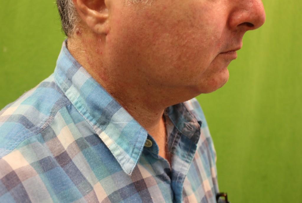 nonsurgical-chin-augementation-using-radiesse-before-1