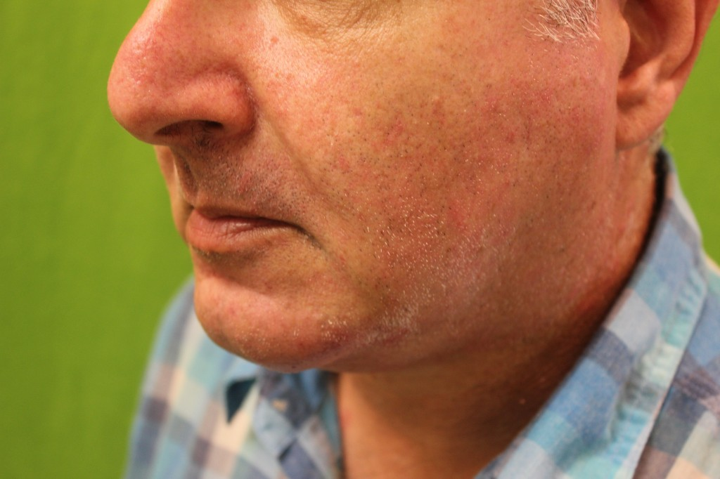 non-surgical chin augementation with radiesse result