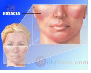 rosacea-treatment-9327