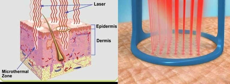 laser-skin-rejuvenation-fraxel-dual-123