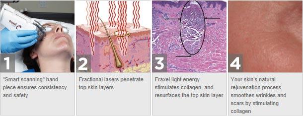 laser-skin-rejuvenation-fraxel-dual-http-::www.luxuriousmagazine.com