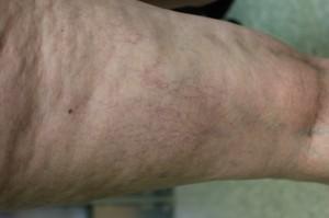 leg vein treatment with Asclera