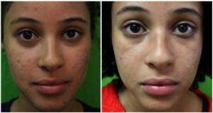 los angeles patient before and after acne scars treatment