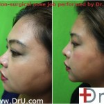 Non-Surgical Nose rhinoplasty Job performed by Dr. U using radiesse
