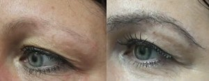 before and after eyebrow hair transplant in a los angeles patient