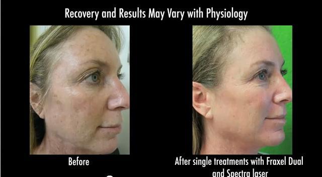 fraxel laser and spectra laser for facial rejuvenation