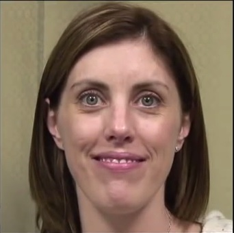 Patient With Laugh Lines Around Mouth