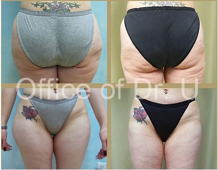 Front and Back View |Liposuction Results on Los Angeles Patient