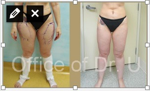 Fat Removal on Patient's Thighs|Before and After Liposuction