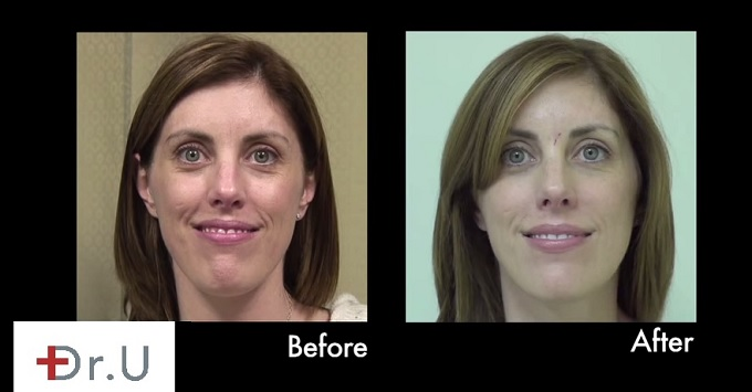 Treating Early Onset of Laugh Lines|Nasolabial Folds