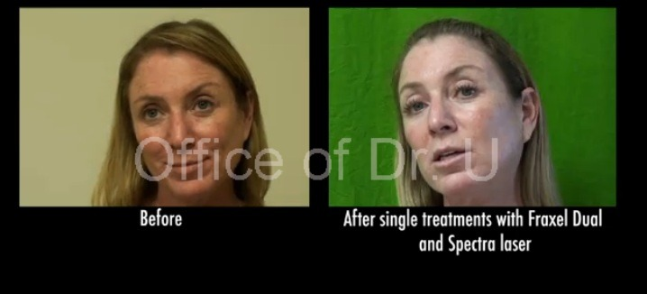 Age Spots| Face Pigmentation Treated With Lasers