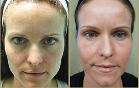 Photos of Los Angeles Patient's Fraxel Repair Results