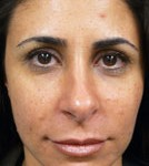 Los Angeles patient received HA filler similar to Juvederm for the treatment of laugh lines