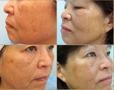 Before and after results of Los Angeles patient who corrected her jowls & saggy skin by undergoing the Silhouette lift