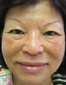 Los Angeles patient after saggy skin and jowl correction with the Silhouette lift