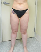 Los Angeles patient after liposuction procedure for lower abdomen and thighs