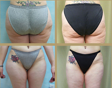 Front and Back Views of Liposuction Results in Los Angeles Patient