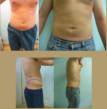 Los-Angeles liposuction before after