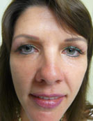 Los Angeles patient after treatment for saggy skin with Silhouette Lift