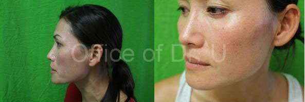 Clear Complexion Results| Age Spot Removal - Asian Patient