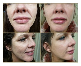 Hyaluronic Acid Filler| Treatment of Laugh Lines on Patient