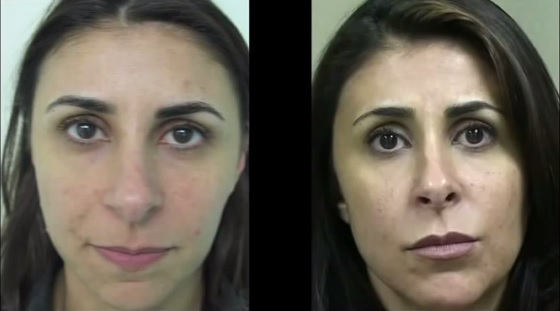 Hyaluronic Acid Dermal Fillers Juvederm For Mild Laugh Lines