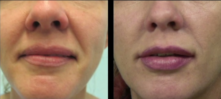 Nasolabial Folds  Sagging Face - Before and After Silhouette Lift