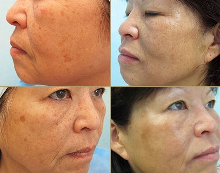 Silhouette Lift Results - Jowls & Sagging