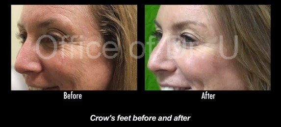 Crows Feet Reduced On Patient| Botox Treatment