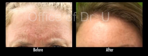 Frown Lines  Treatment With Botox
