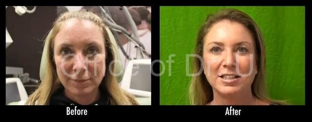 Botox   Patient With Natural Looking Results