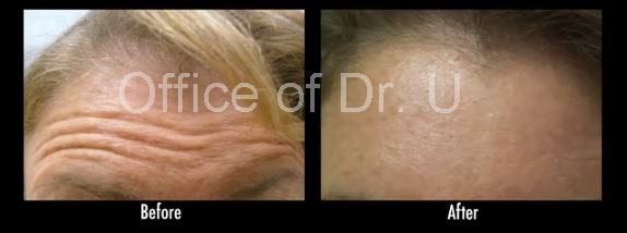 Forehead Lines  Treatment With Botox