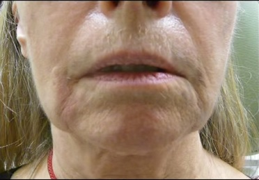 Patient Before Radiesse Treatment For Wrinkles