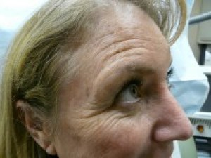 Wrinkles Prior to Botox Treatment| Forehead Lines & Crows Feet