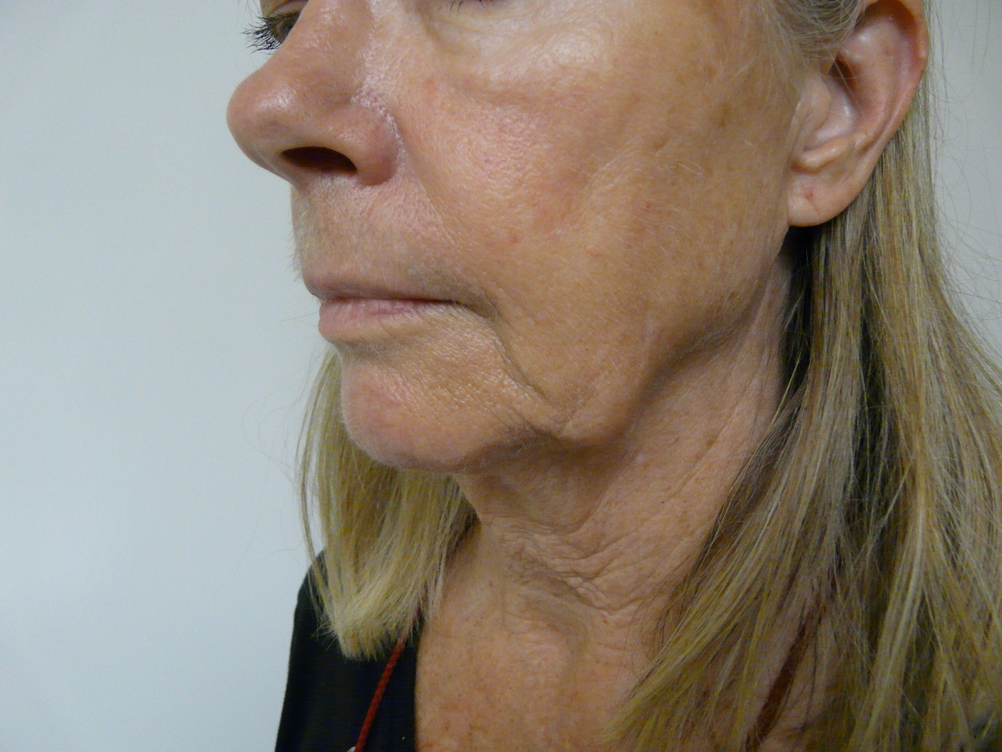 Radiesse for Jowls |Glendale and Malibu