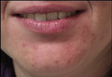 Acne Scarring| New Hope With Lasers
