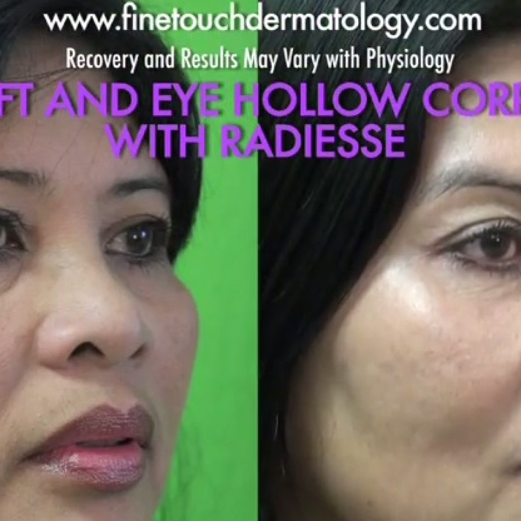 Cheek Lift Without Surgery| Radiesse