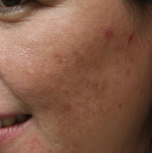 Los-Angeles-Acne-Scars-1