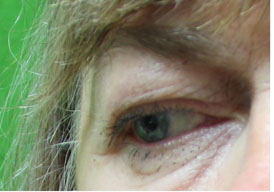 Treatment For Eyebags in Los Angeles