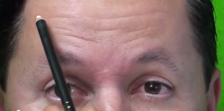 Forehead Wrinkles Before Dysport Injections